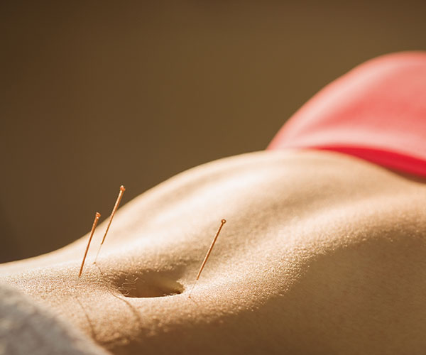 natural-fertility-acupuncture