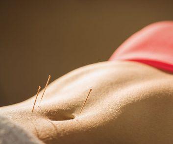 natural-fertility-acupuncture
